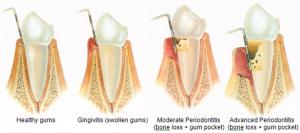 Periodontal Gum Disease