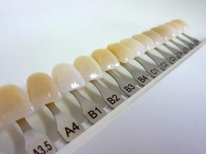 Set of dental veneers for tone selection